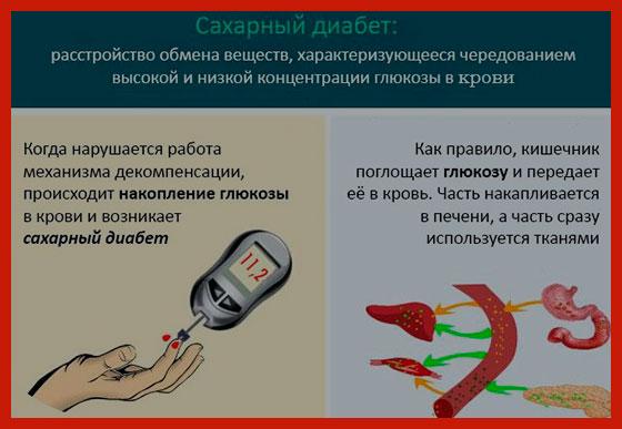 памятка для больного сахарным диабетом